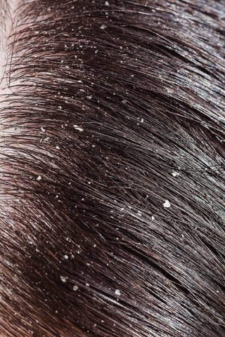 Keratin treatment and dandruff. Whether there is a connection between them?