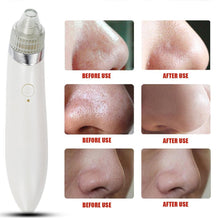 Load image into Gallery viewer, Electric Facial Skin Care Pore Blackhead Remover Cleaner Vacuum Acne Cleanser AU