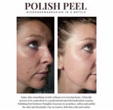 "Peeling Maison Naturel ""Indispensable dans la routine"" (Microdermabrasion Soft)"