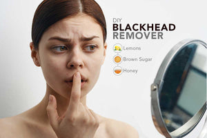 How to Clear Blackheads using Lemon, Brown Sugar and Honey