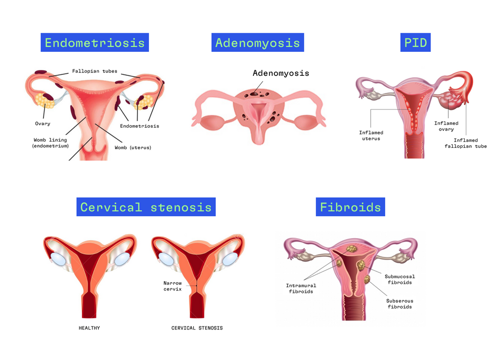 Different types of secondary dysmenorrhea
