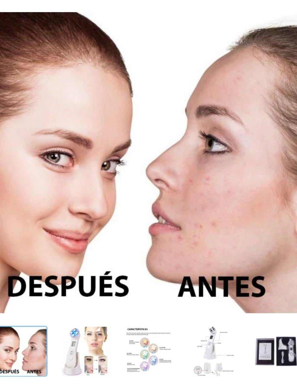 Ultrasonido Facial