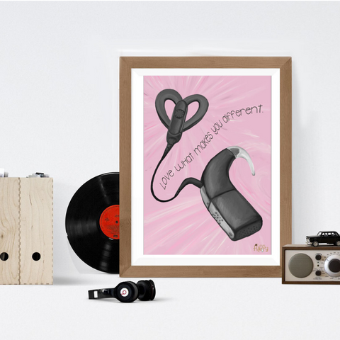 Cochlear Implant Print - Love Harry X