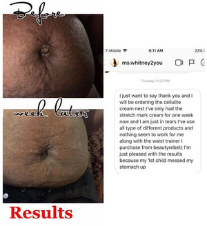 Cellulite & Stretch Mark Removal Double Pack!