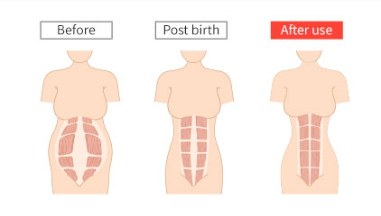 Mamaway Postnatal belly band helps mother get back in shape after giving birth. It can tighten, support and recovery mother uterus and muslce.