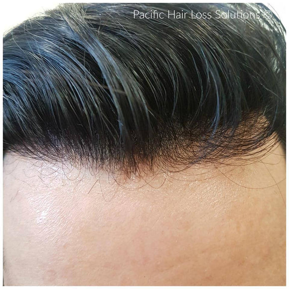 MEN'S HAIRPIECES INJECTED WITH VIRGIN HAIR (0.05mm base thickness)