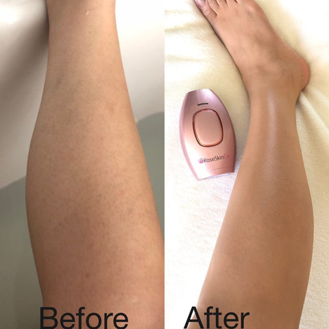 RoseSkinCo IPL Laser Hair Removal Before And After Review Picture