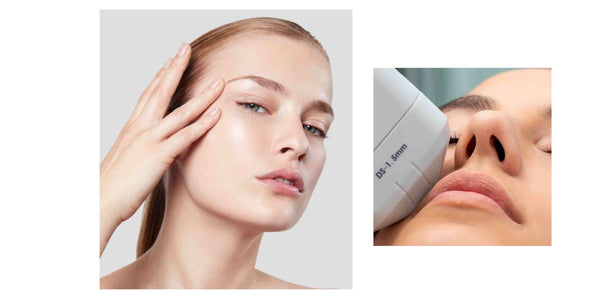 Ultherapy / HIFU / MAYFAIR