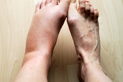 What is Edema?