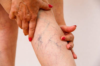 What Are Varicose Veins and How Can They Be Treated?
