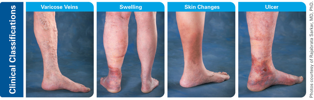 Different Types of Venouse disorders including Varicose Veins, Swollen Leg, Skin Damage and Skin Ulcers