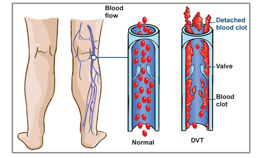 The Danger of DVT - Comparison between normal blood flow and vein with blood clot