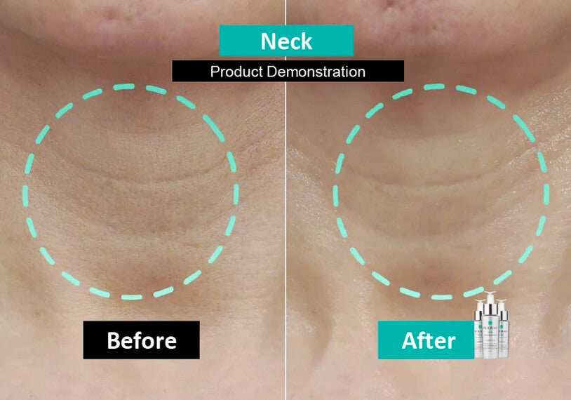 Before and After Neck