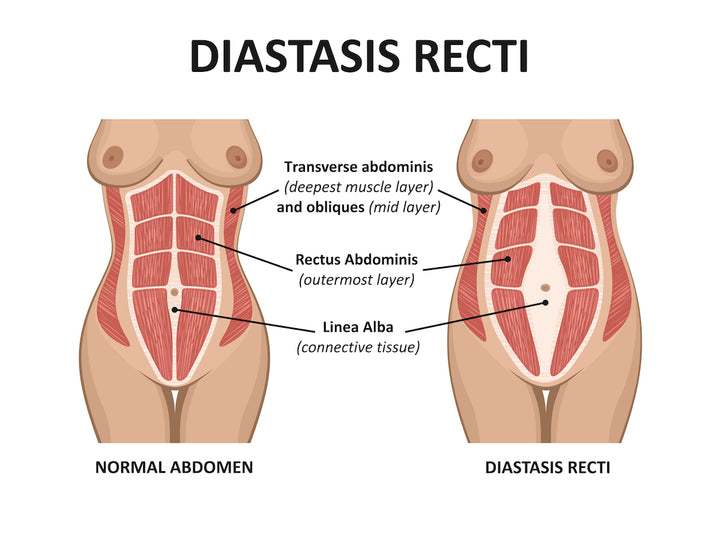 Five Exercises to Heal Diastasis Recti (DR)