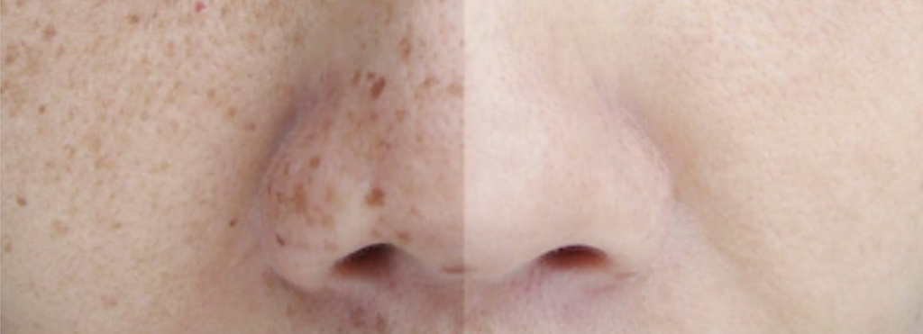 Pigmented Lesions – ddctech
