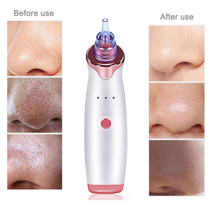 Electric Blackhead Pore Vacuum Extractor Tool