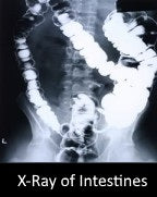 X-Ray of Intestines