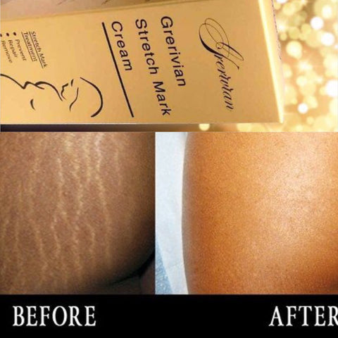 Grerivian STRETCH MARK CREAM - www.grerivian.com