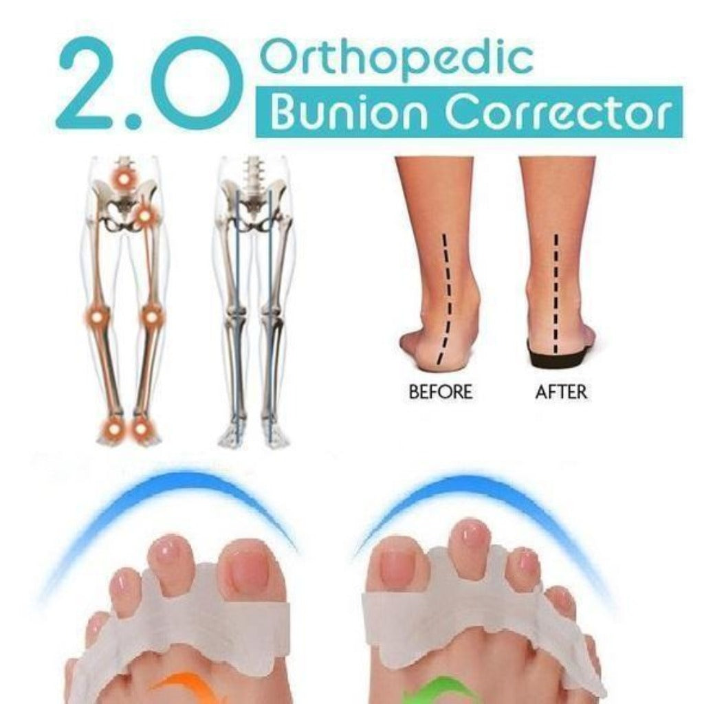 Orthopedic Bunion Corrector 2.0 (2020 New) - 2 PAIRS - Awesales