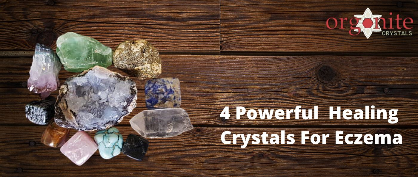 4 Powerful Healing Crystals For Eczema
