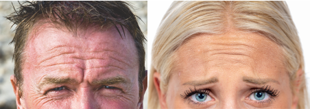 Man And Women With Deep Forehead Wrinkles