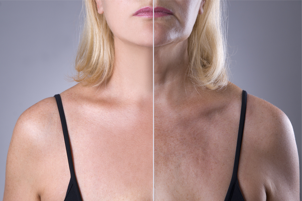 Women Split Screen Showing Sun Damage