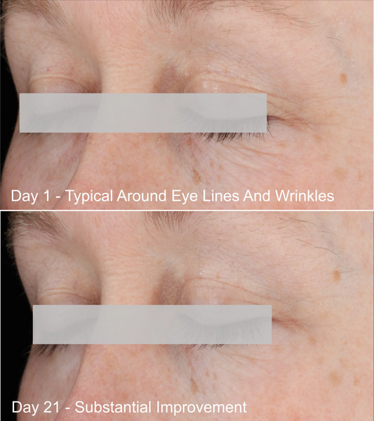 Reconstructing Serum Eye Area Before and After Photo