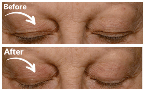 Eye Control Before and After Image: Droopy Eyelid
