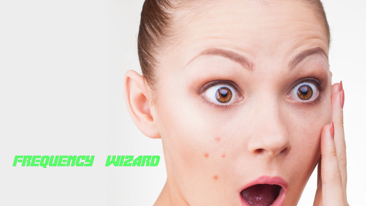 Get Rid of Acne, Pimples, Zits, Blemishes Fast! - Frequency Wizard