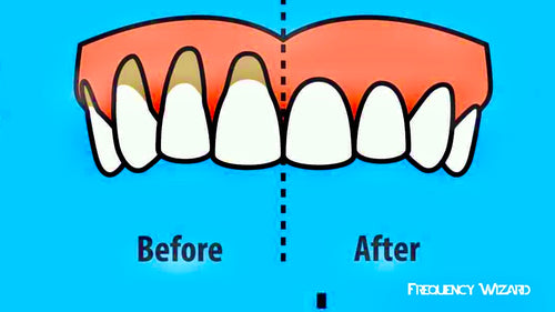 RECEDING GUMS TREATMENT! WORKS FAST! FIX GUM RECESSION SUBLIMINAL SUBCONSCIOUS HYPNOSIS BINAURAL BEATS SPELL - FREQUENCY WIZARD