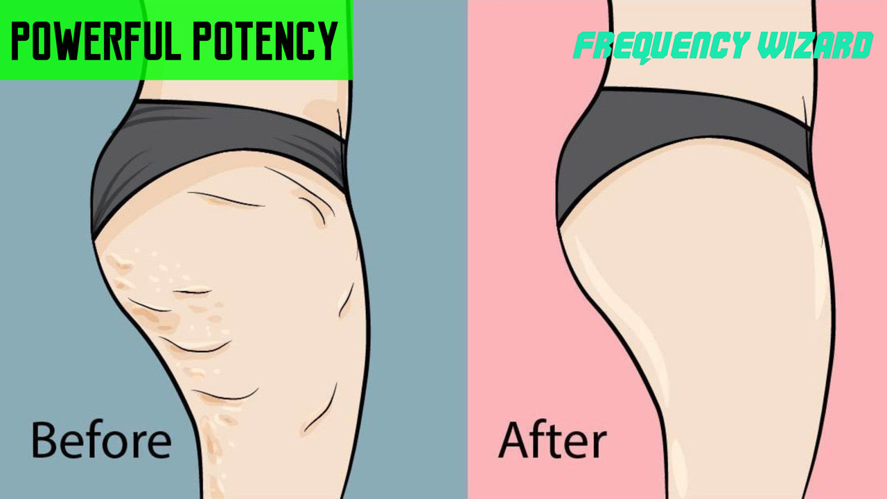 REMOVE STUBBORN CELLULITE FAST - FREQUENCY WIZARD
