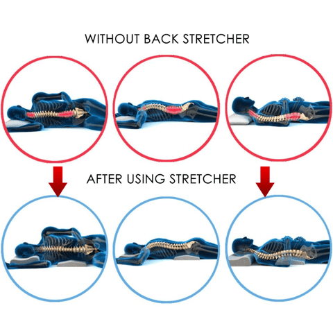 Supreme Back Stretcher Lumbar Support Device   Smart Outdoor Store