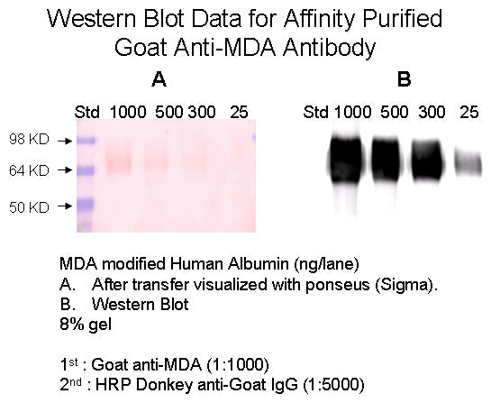 [A16] Goat Anti-MDA (Malondialdehyde) Polyclonal Antibody, Academy Bio-medical Company, Inc.