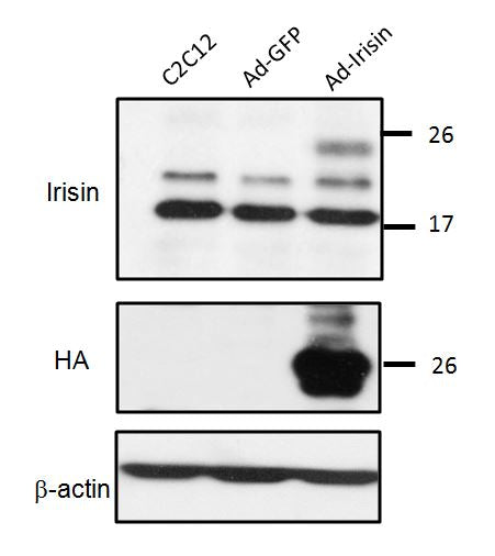 [A28] Rabbit Anti-Irisin (FNDC5) Polyclonal Antibody, Academy Bio-medical Company, Inc.
