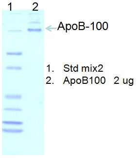 [P07] Water-Soluble Human Apolipoprotein B-100, 50% glycerol, Academy Bio-medical Company, Inc.