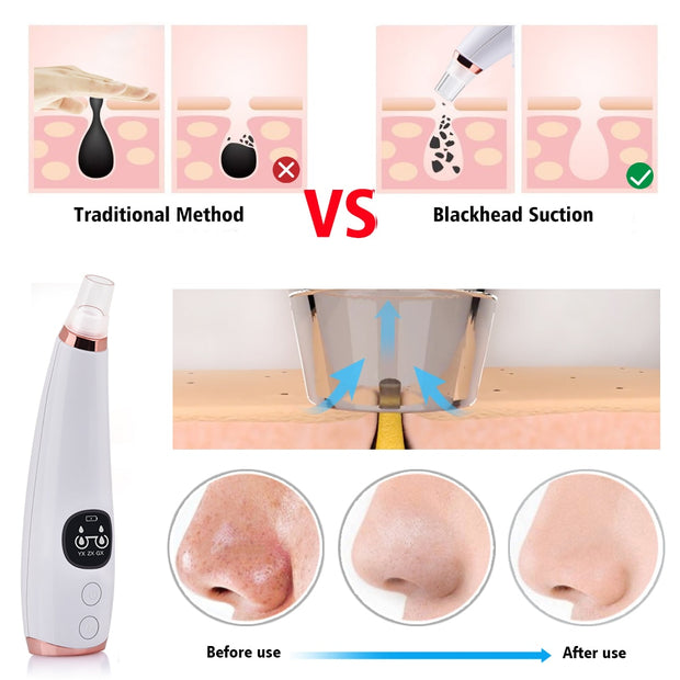 Facial Cleaner Nose Blackhead Remover