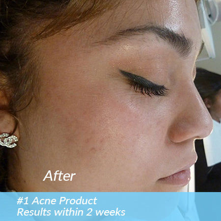 2-STEP ACNE CARE KIT (SENSITIVE)