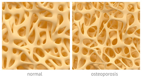 Bone density healthy bones calcium vitamin d