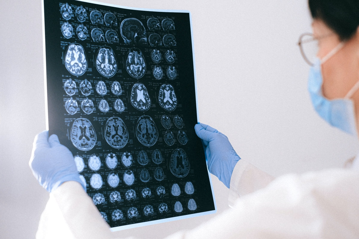 image of a doctor holding an x-ray of a brain