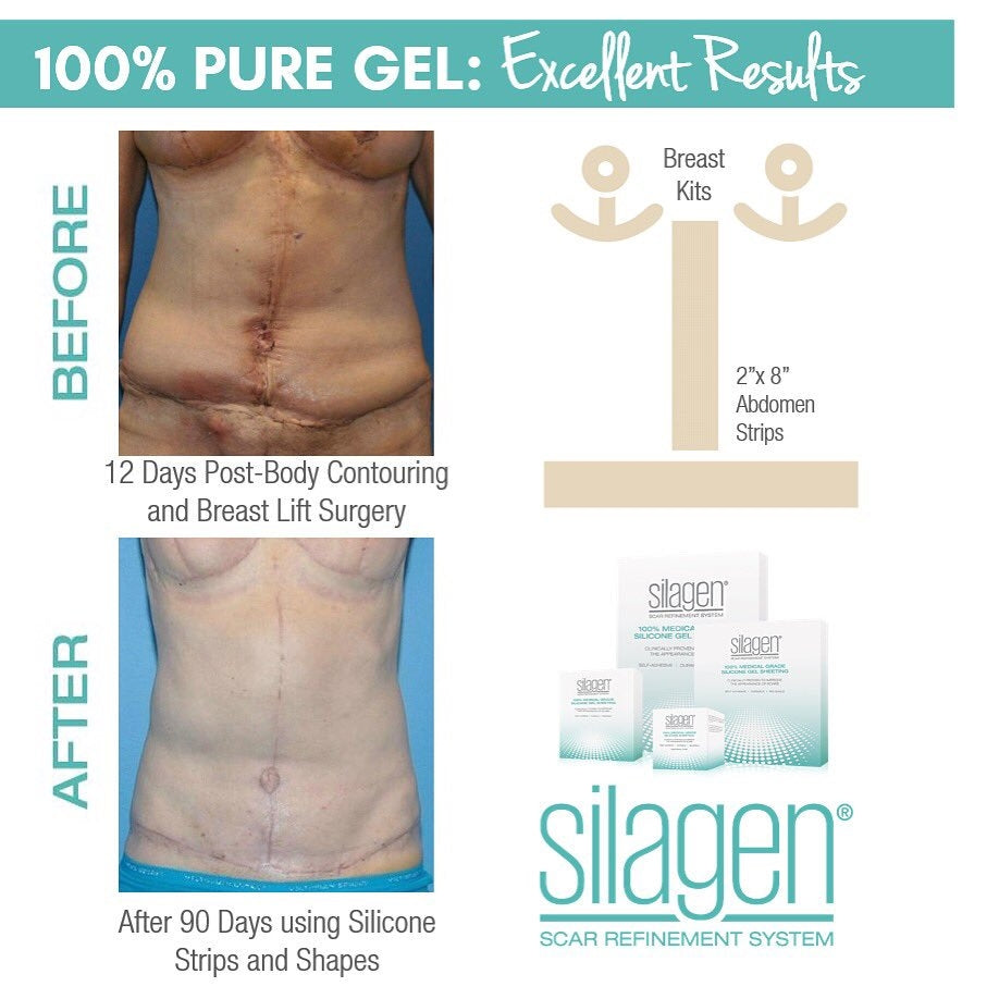 Silagen  100% Medical Grade Silicone Gel Scar Sheet Belly Button Sphere