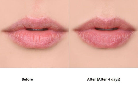 [bonamedusa] Lip Wave Delete 15g / 0.52oz Lip Filler Lip Volume K-beauty - BEST BEAUTIP
