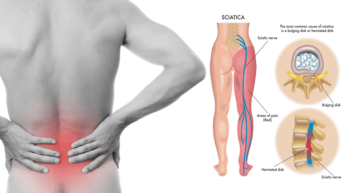 What do you mean by Sciatica Pain & how it could be it cured?