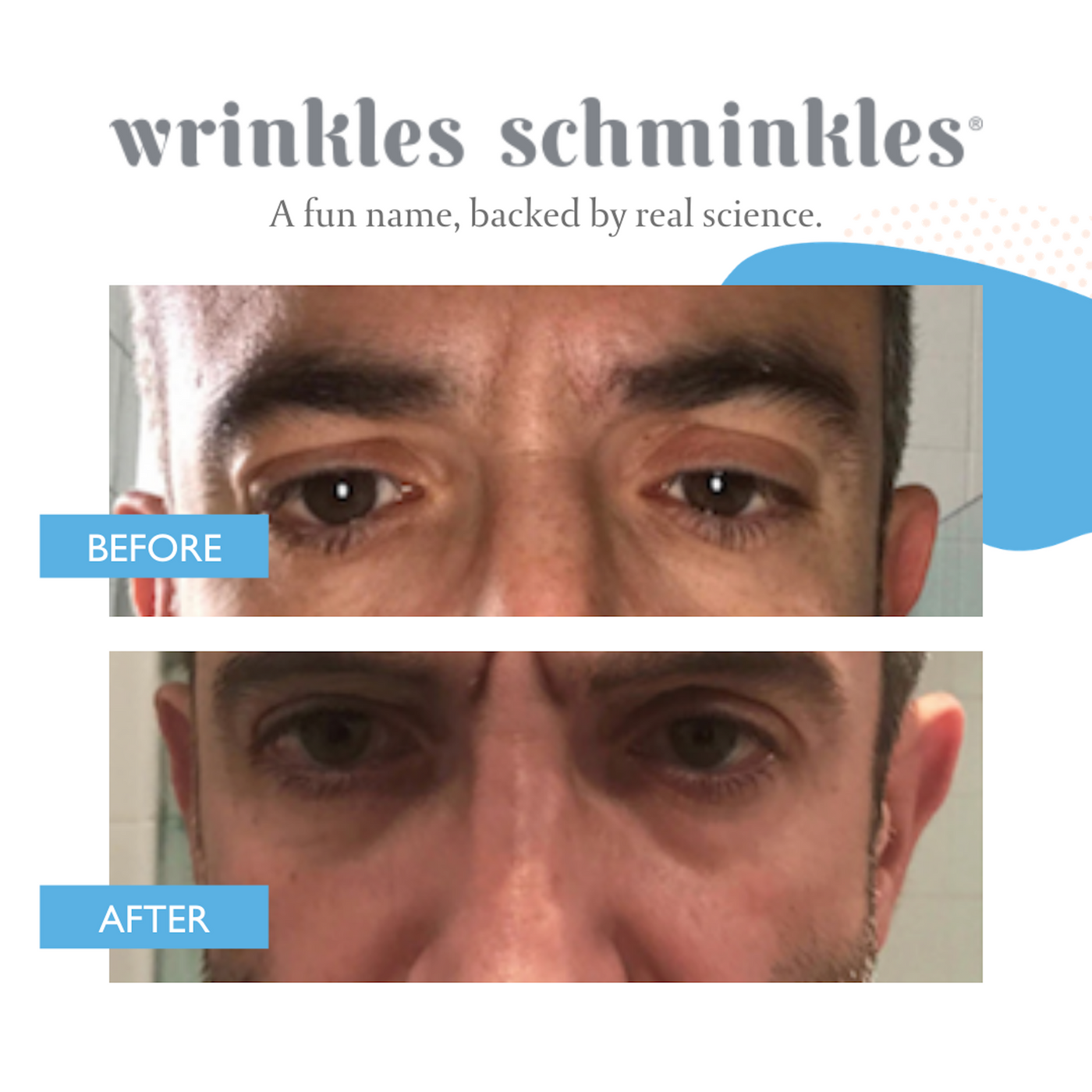 Wrinkles Schminkles Men's Eye Smoothing Kit (3 pairs)