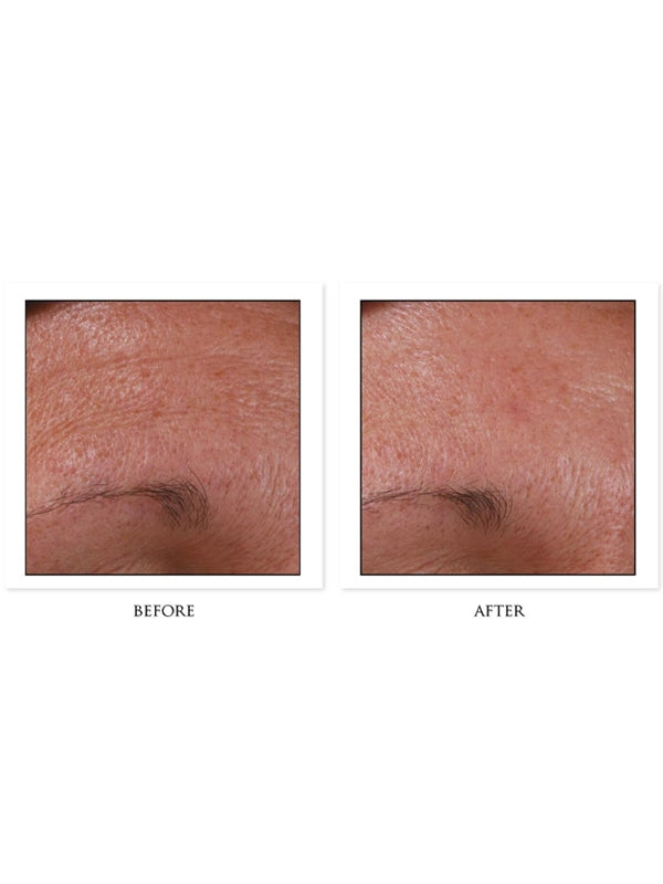 CosMedix Benefit Clean Before/After