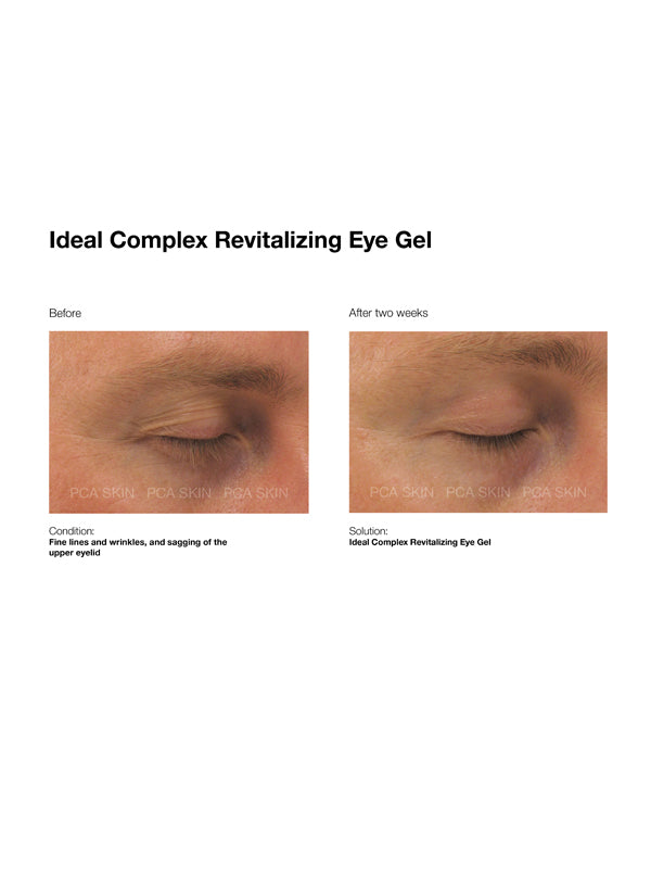 PCA Skin Ideal ComplexÔö¼┬½ Revitalizing Eye Gel
