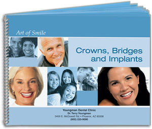 The Art of Smile Flip Guide: Crowns, Bridges and Implants
