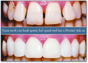 Before and After Veneer Postcard