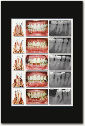 Cosmetic Mouth X-rays Poster