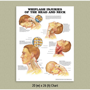 Whiplash Injuries Chart - POWHIP