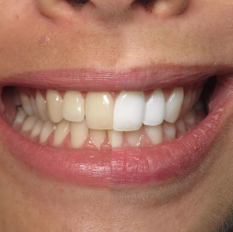 Teeth Whitening Which Is Best For Me Nano